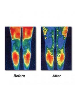 Масажор за подобряване на кръвообращението и облекчаване на болките в краката
